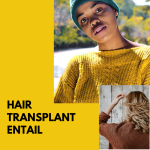types of hair transplant