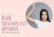Hair Transplant Options