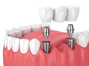 Dentures or Bridges