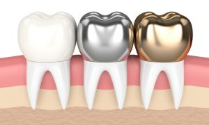 crowns teeth